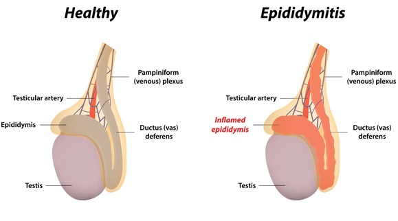 Testicular Function Problems and Treatments epididymis